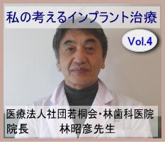 中野区インプラント名医検索