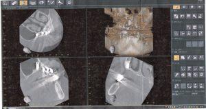 上顎洞にインプラントが入った写真