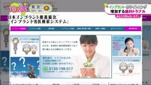 インプラント名医TV放送1