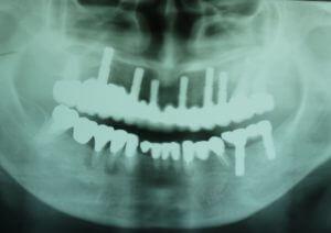 富士歯科医院インプラントパノラマ写真