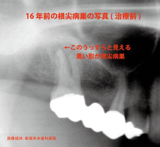 根尖病巣写真1