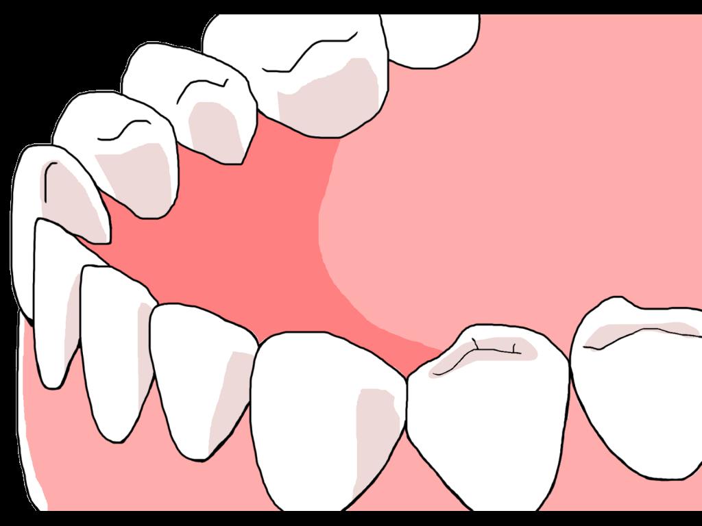 健康な歯の写真